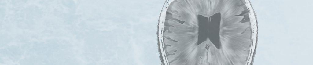 Εμβόλια & Σκλήρυνση κατά Πλάκας: οδηγίες απο την American Academy of Neurology
