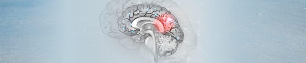 Λευκοεγκεφαλοπάθεια CADASIL