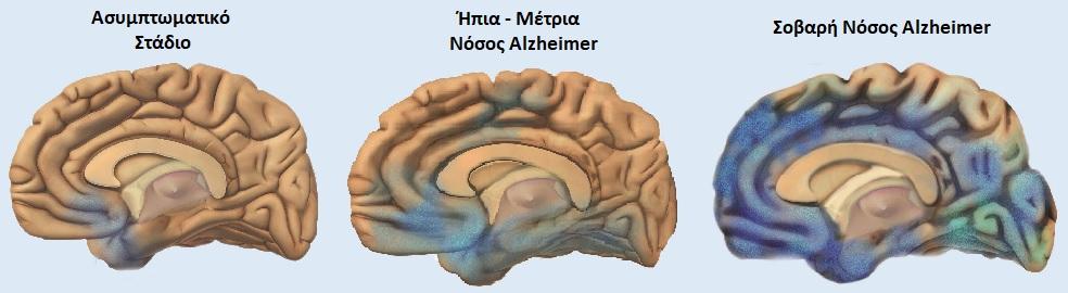 Αλτσχαιμερ-σταδια-νοσου