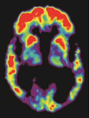 Alzheimer PET SCAN πλακες αμυλοειδους