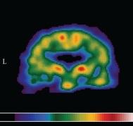 ανοια-σπινθηρογραφημα-αιματωσης-εγκεφαλου