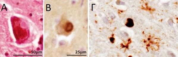 Σωματια Lewy α-συνουκλεΐνη