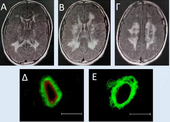 CADASIL ευρήματα μαγνητικής τομογραφίας και βιοψία δέρματος