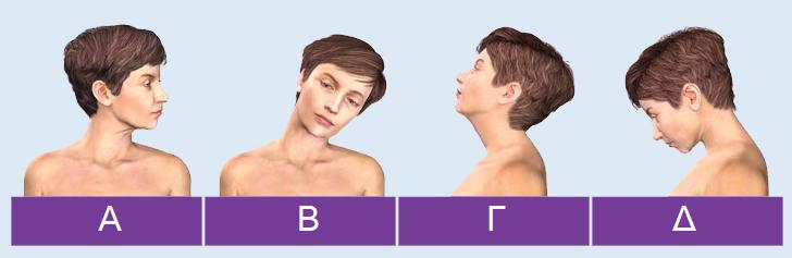 Ραιβόκρανο-αυχενική-δυστονία