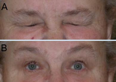 βλεφαρόσπασμος και μποτοξ-botox